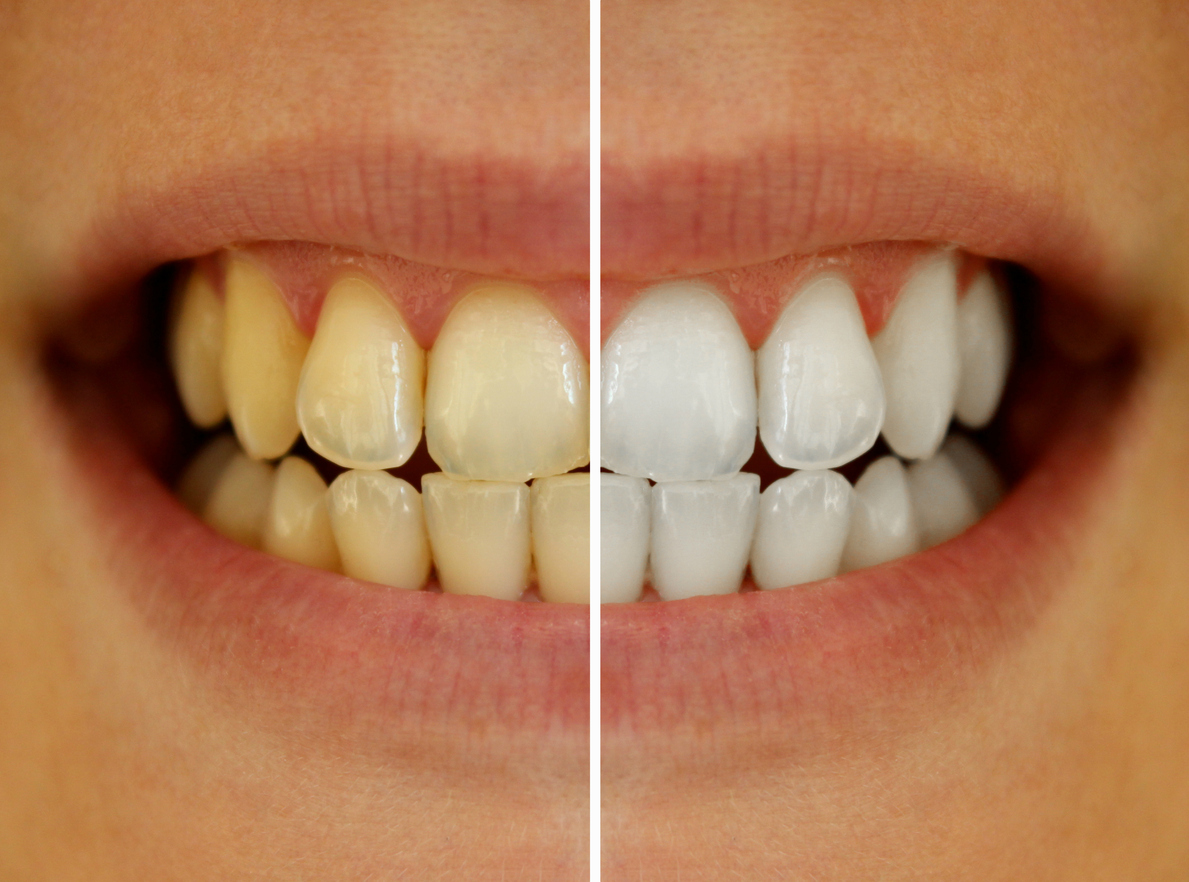 Bright White Smiles From Your Dentist In Salt Lake City Charles